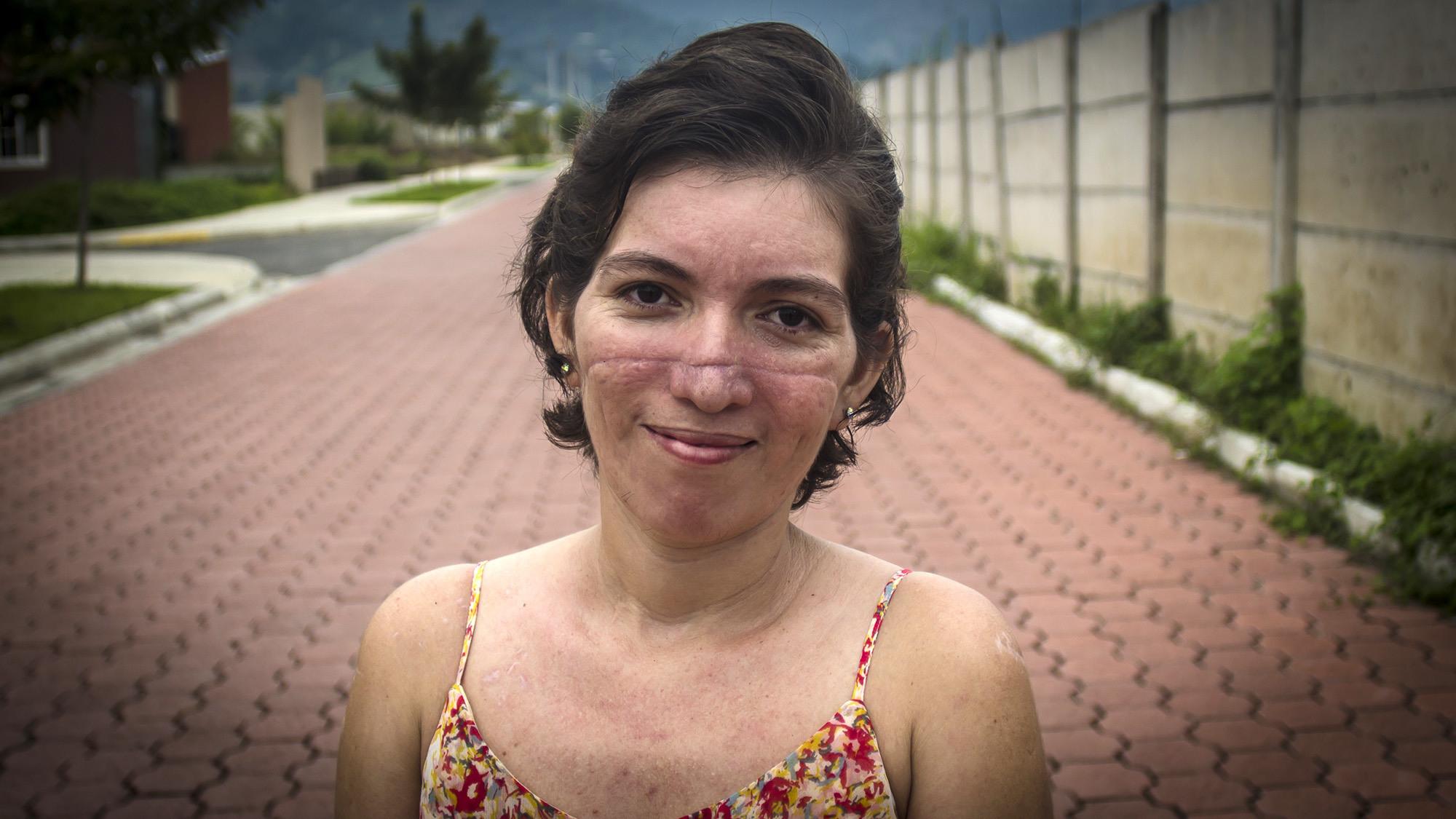 La salvadoreña Yolanda Henríquez, víctima de la violencia extrema en El Salvador, mostró su rostro sonriente en FACTUM, para pedir un alto a la violencia contra la mujer. Su ex marido la machetio en su rostro y todo el cuerpo, cuando ella decidio abandonarlo por repetidos ataques en su contra. Vivio para contarlo. Foto FACTUM/Salvador MELENDEZ